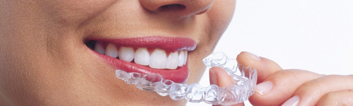 What Every Invisalign Candidate Should Know